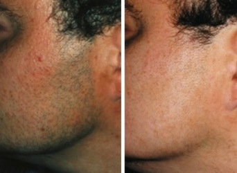 laser_hair_removal_face_gbkderm